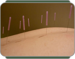 picture of patient having multi point acupuncture insertions at Bodyharmonics