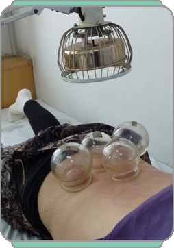 cupping treatment with heatlamp
